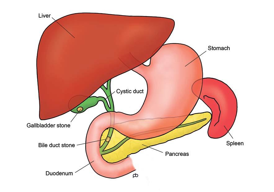 Abeezar Sarela Gallstones Laparoscopic Cholecystectomy